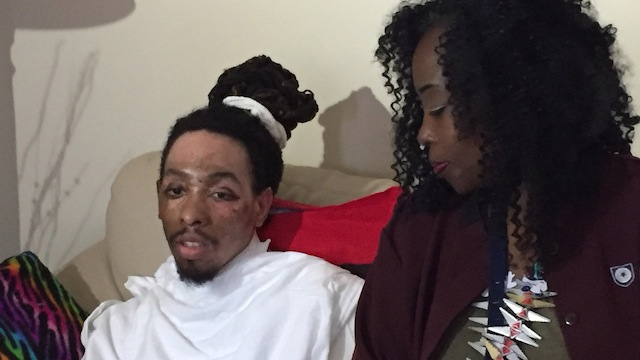画像引用元 http://www.wsbtv.com/news/local/atlanta/gay-man-severely-burned-in-hot-water-attack-speaks-out/168120996